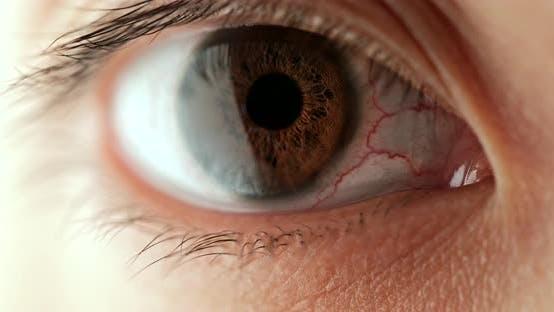 Thumbnail for Woman Red Blood Eye