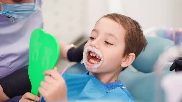 Thumbnail for Funny Little Boy Having a Treatment in the Dentistry with an Opening Mouth Guard