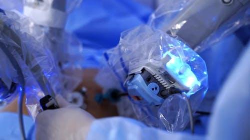 Robotic arms doing a surgery