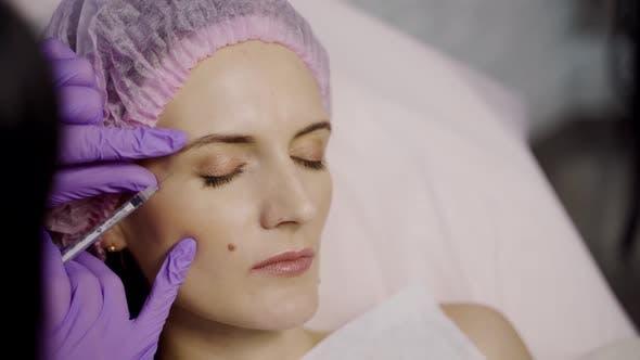 Thumbnail for Ein Kosmetikerin injiziert Botox-Schüsse in den Faltenbereich einer Beauty Woman