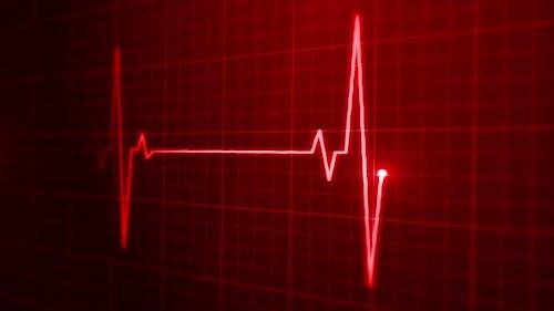 EKG Pulse