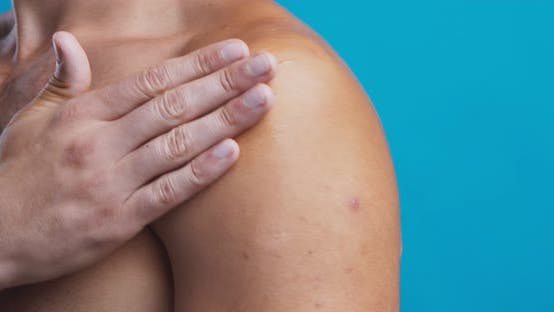 Thumbnail for Man Massaging Inflamed Shoulder with Healing Medical Gel, Close Up