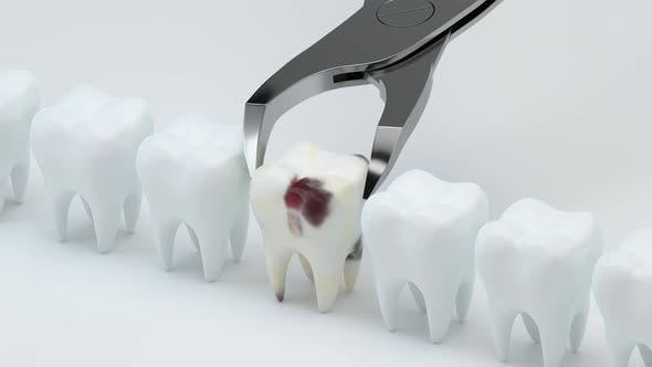 Animation of removing the sick tooth.