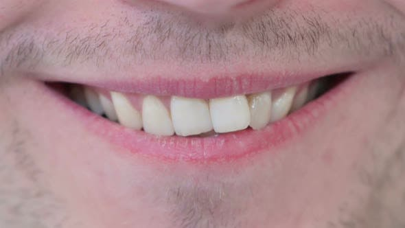 Smiling Lips and Teeth of Young Man