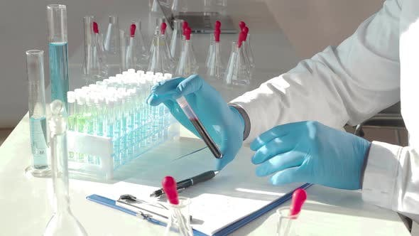 Thumbnail for Test Tube Witn Blood Sample in a Researcher's Hands.