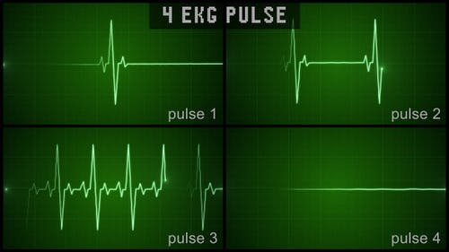 EKG Pulsset