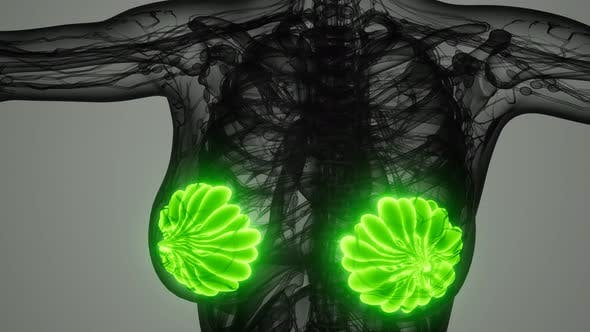 Medical Scan of Woman Breast Cancer