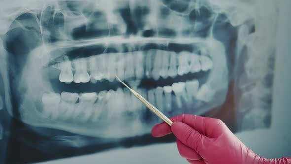 The Dentist Examines a Panoramic Xray of the Teeth