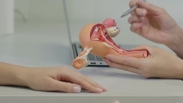 Thumbnail for Gynecologist Doctor Consulting Patient Using Uterus Anatomy Model