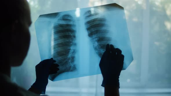 Studying Xray Image of Human Chest on Window Background Doctor Checking Fluorography of Patient on