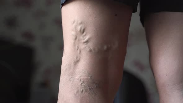 Varicose Veins on Woman Legs Indoors. Vascular Health Problem. Trombose on Female Legs