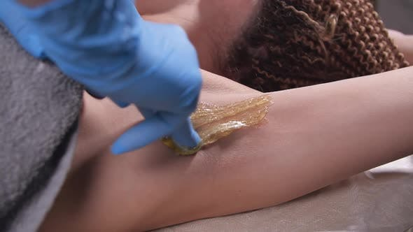 Thumbnail for Beauty and Body Care Concept. Sugaring: Epilation with Liquate Sugar at Armpit