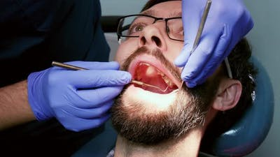Dentist Prepare Man Tooth To Fill a Tooth