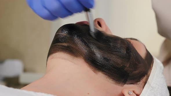 Carbon-Peeling. Hardware-Kosmetologie. Gesichtshautverjüngung. Vorbereitung auf das kosmetische Verfahren