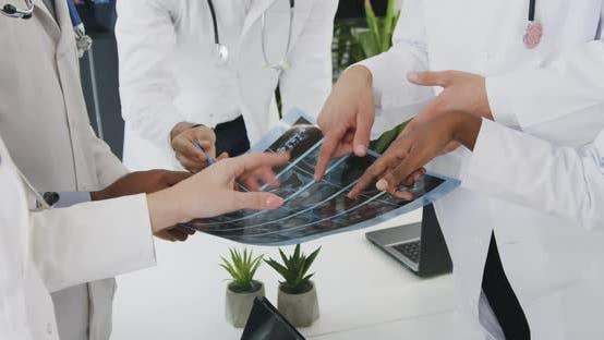 Thumbnail for Medical Coworkers in white Uniforms Analyzing Results of x-ray During Meeting