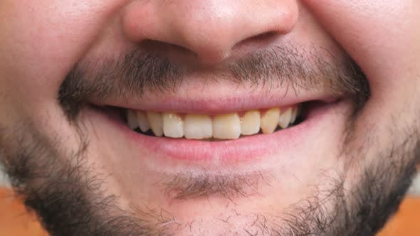 Thumbnail for Close Up Mouth of Young Bearded Man Smiling and Showing White Teeth. Cheerful Handsome Guy Laughing