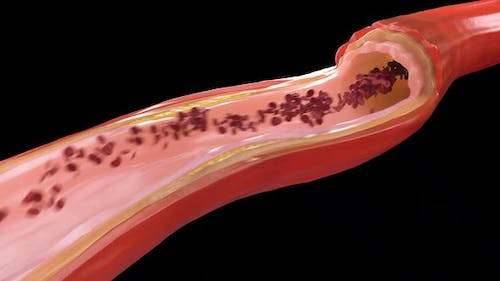 Atherosclerosis - Plaque build up from cholesterol