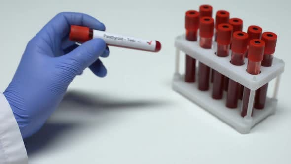 Thumbnail for Positive Parathyroid Test, Doctor Showing Blood Sample in Tube, Health Checkup
