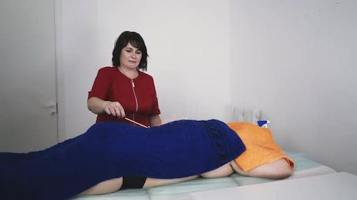 Therapist Burns Flame on Patient Back Covered with Towel