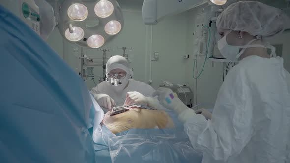 Medical Staff of the Operating Unit Do Heart Surgery. Nurse Assists in Performing the Operation