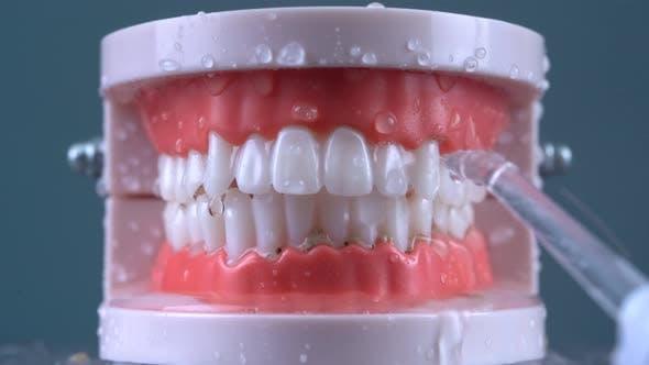 Teeth Cleaning Water Pressure