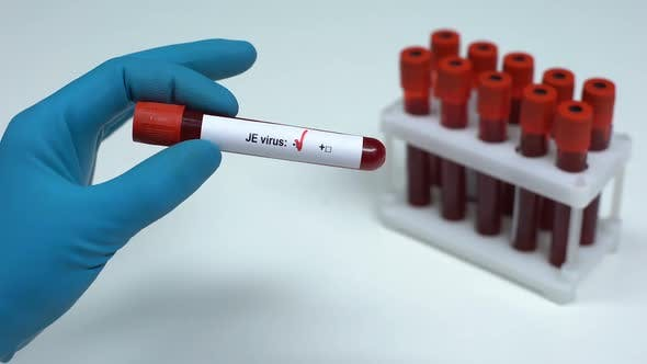 Thumbnail for Negative JE Virus Test, Doctor Showing Blood Sample Lab Research Health Check-Up