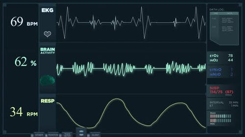 Electrocardiogram Display Reading in Normal Mode