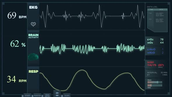 Thumbnail for Electrocardiogram Display Reading in Normal Mode