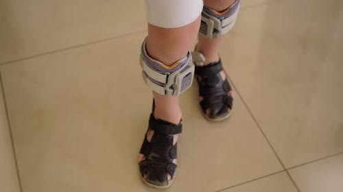 Child with system for foot drop treatment