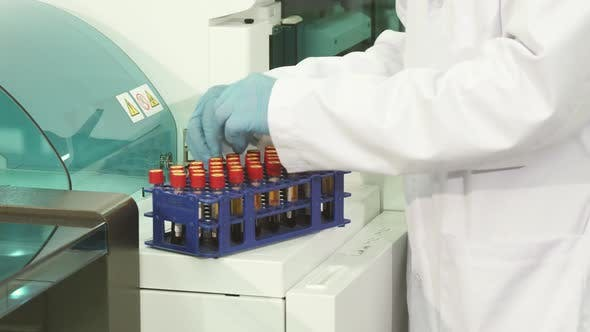Thumbnail for A Close-up of the Preparatory Process Before Placing the Tubes in a Laboratory Centrifuge