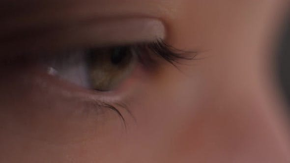 Thumbnail for Sick Red Human Eye of a Young Woman. A Girl Takes Off Her Glasses, Showing a Red Eye. Tired Eyes