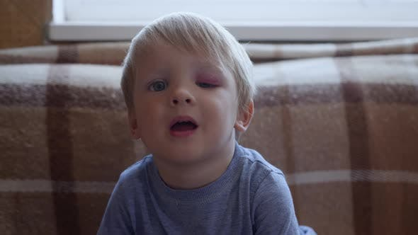 Childhood, Little Cute Child with Trauma on His Face and Black Eye Looks at Camera on Background of