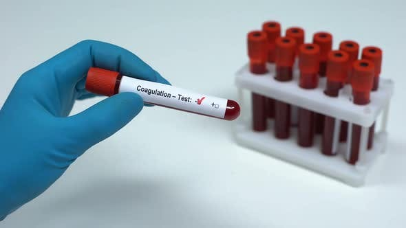 Thumbnail for Negative Coagulation Test, Doctor Showing Blood Sample, Lab Research, Healthcare