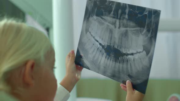 Thumbnail for Girl Is Looking at X-ray of Her Teeth in Cabinet.