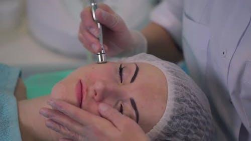 Kosmetologisches Verfahren Microdermabrasion für ein Mädchen mit Problemhaut