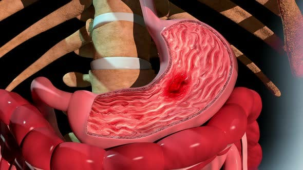 Formation Of An Ulcer In The Stomach