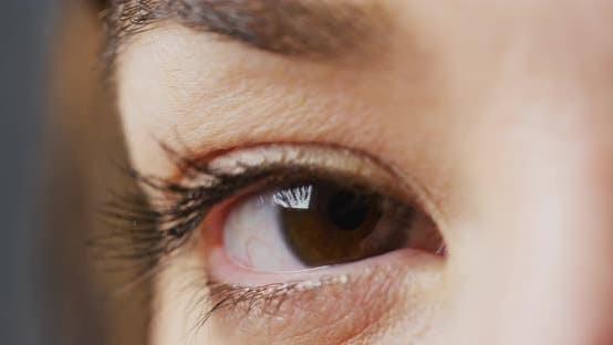 Thumbnail for A brown eye