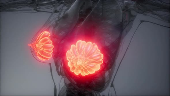 Thumbnail for Medizinisch genaue Illustration einer fettleibigen Frauen Brustdrüsen
