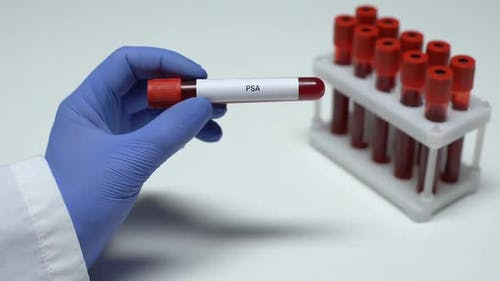 PSA Test, Doctor Showing Blood Sample in Tube, Lab Research, Health Checkup