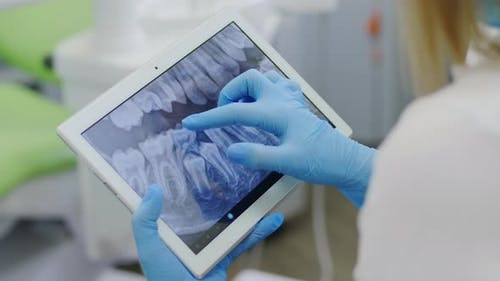 X-ray of the Teeth on a Portable Device