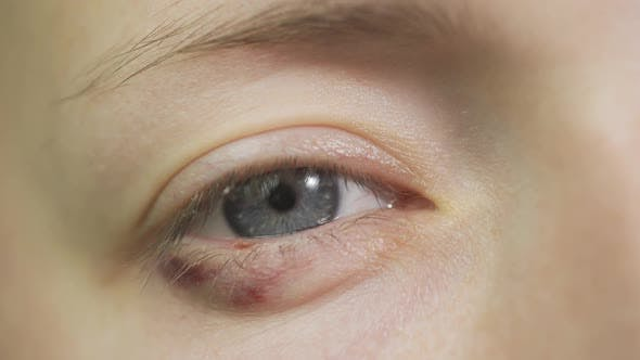 Thumbnail for Close Up of Abused Woman Face with Bruise