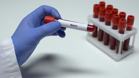 Thumbnail for Malaria Test, Doctor Showing Blood Sample in Tube, Lab Research, Health Checkup
