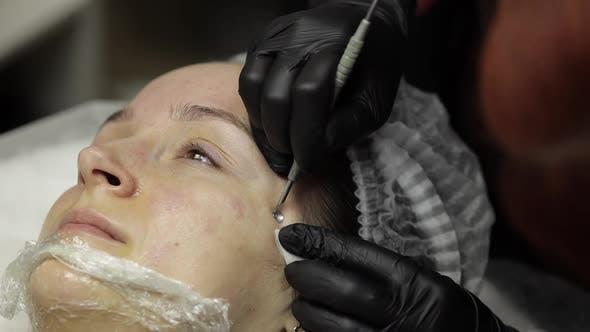Thumbnail for Cosmetologist Machen Gesichtsreinigung Kosmetologie Haut Akne Verfahren auf Frau Gesicht
