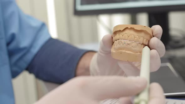 Thumbnail for Orthodontist Showing the Impression of Jaw
