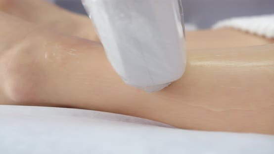 Laser Hair Removal Procedure, Close Up