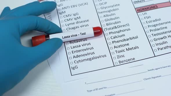 Thumbnail for Lassa Virus, Doctor Checking Disease in Lab Blank, Showing Blood Sample in Tube