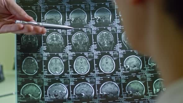 Cover Image for Doctor Explaining CT Scan of Brain