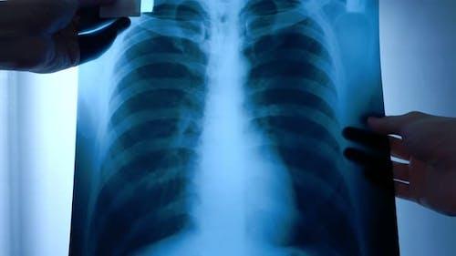 Facharzt untersucht Röntgenfilm des Patienten.