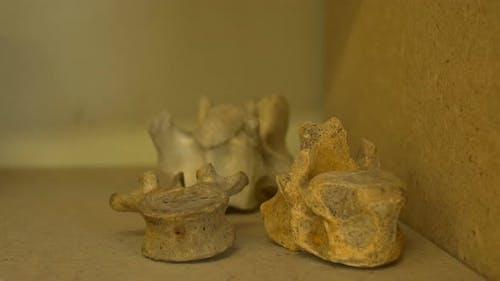 Alte menschliche Rückenmarksknochen