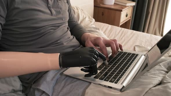 Cover Image for Handicapped Man with Bionic Prosthesis Working on Laptop in Bed